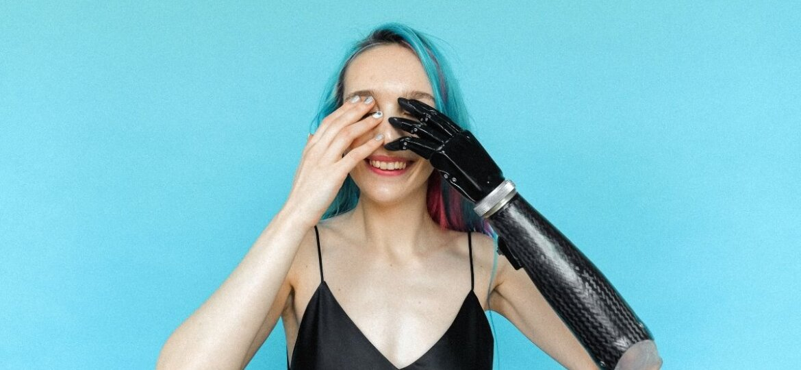 A woman covering her eyes with her prosthetic arm.