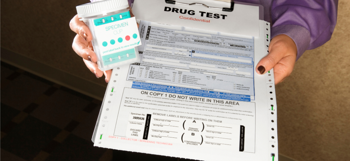 A person handing out a drug test for a workers compensation claim.
